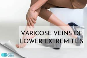 Varicose veins of lower extremities